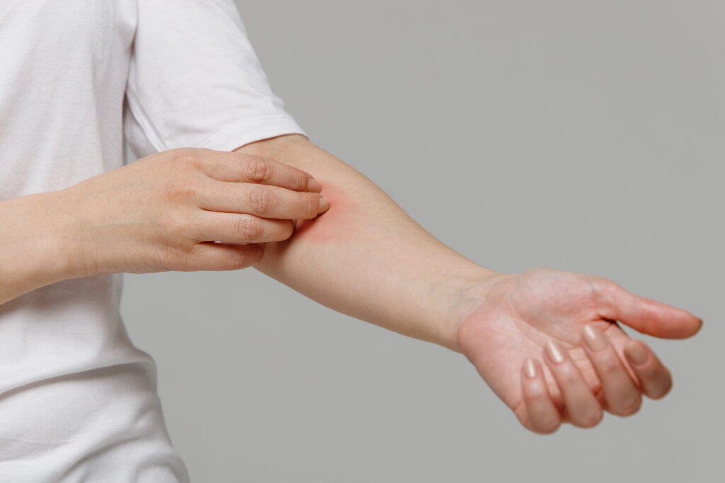 Syphilis: Causes, Symptoms & Treatments