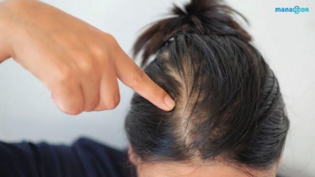 Oily scalp makes hair look thinner