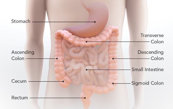 Colorectal cancer is cancer of the colon or the rectum