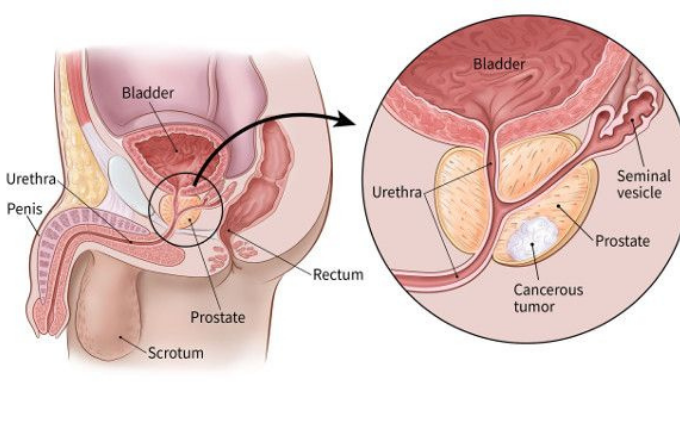 Prostate cancer begins when cells in the prostate gland start to grow out of control